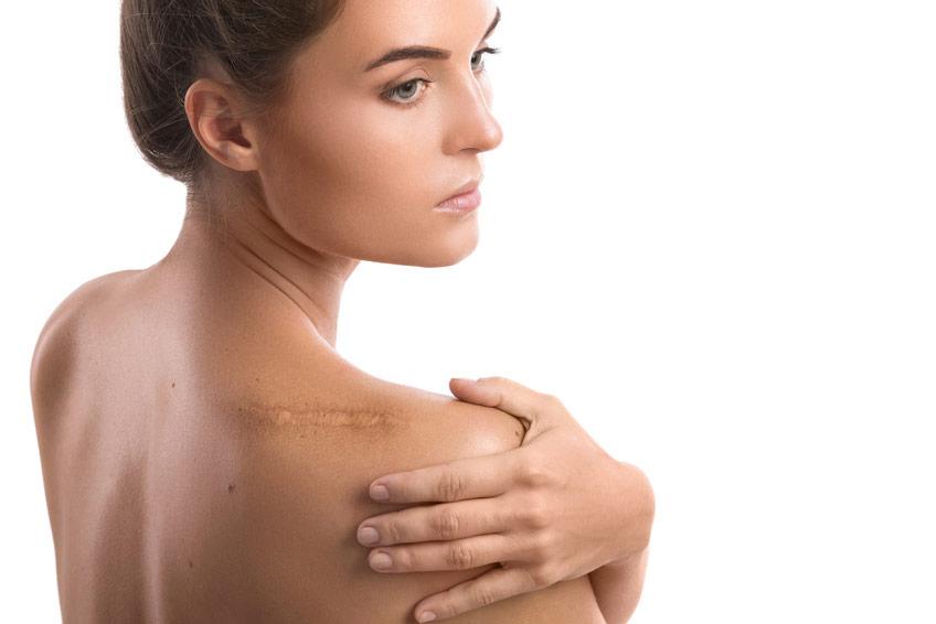 Pour régénérer et cicatriser la peau ByoTop