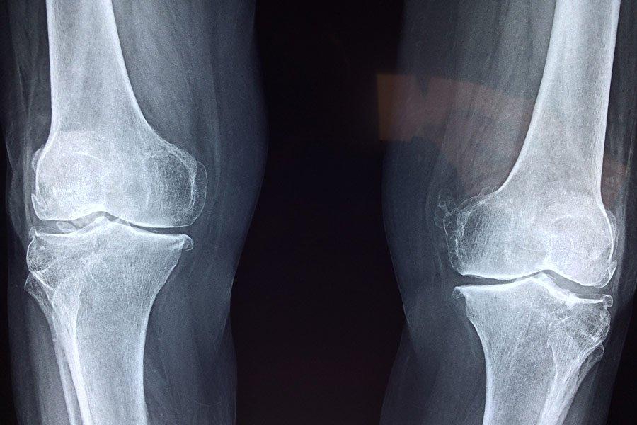 Soulager l'arthrose avec les oligoéléments Byotop