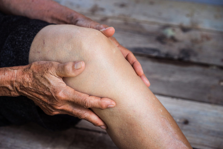 Les oligoéléments et les plantes apportent un réel soutien aux problèmes d'arthrose