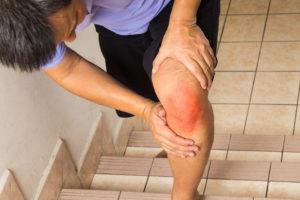 Symptômes de l'arthrose